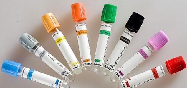 tubos-de-extraccion-de-sangre-Kalstein.jpg